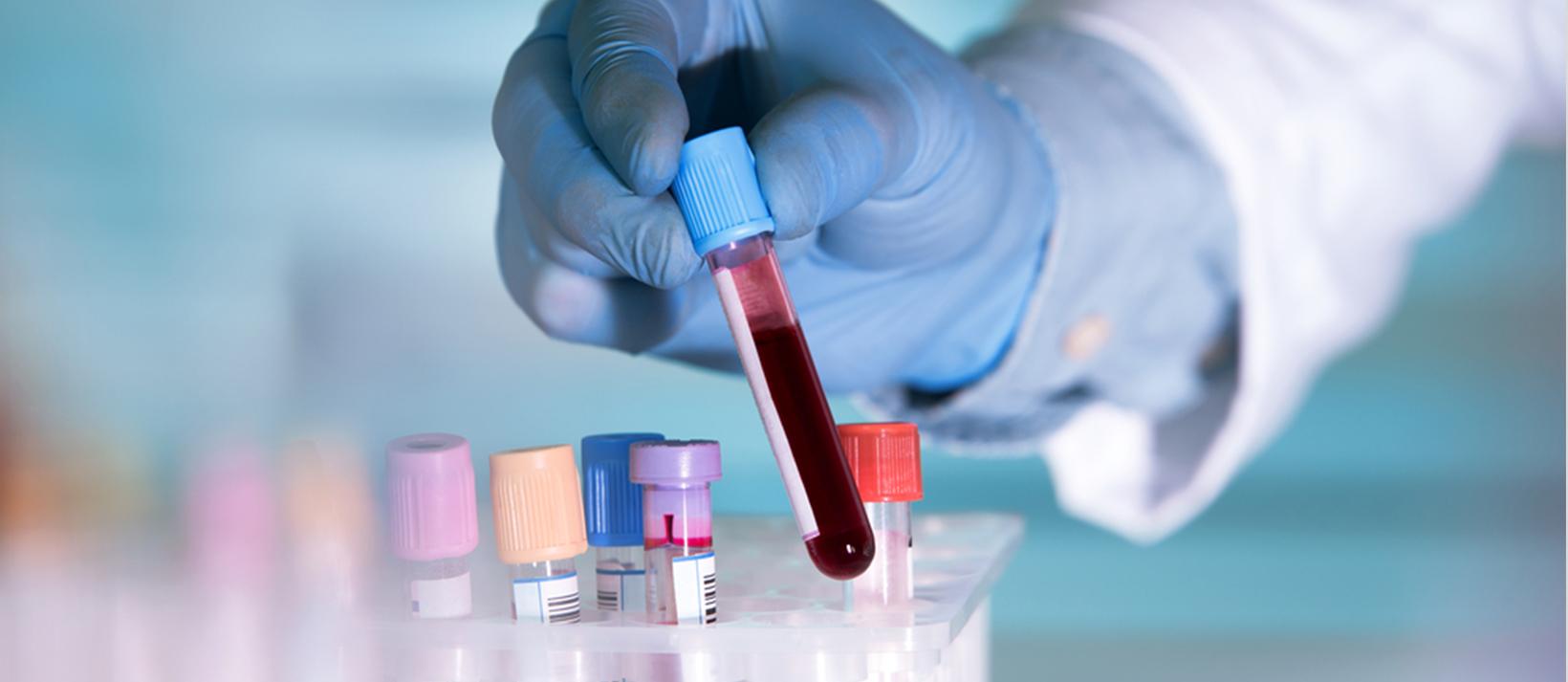 Immunity and COVID-19
